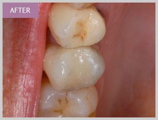 Composite filling Dentists Edinburgh