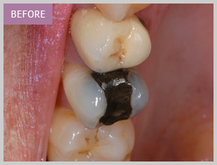 Amalgam filling Edinburgh dentists