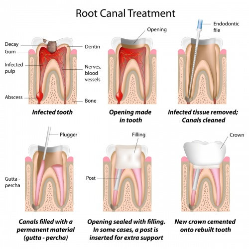 root canal treatment Edinburgh dentists